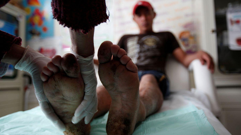 Un inmigrante centroamericano recibe un masaje de pies de una voluntaria en Ciudad Juárez, en noviembre de 2016. (Reuters)
