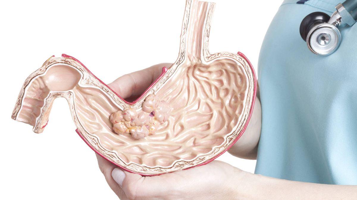Salud 4 Formas De Deshacerse De La Acidez Estomacal Sin Tomar Medicamentos