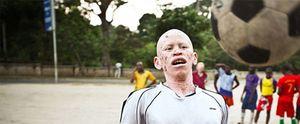 Foto: Albino United, el club de fútbol que humaniza a los 'demonios' de África