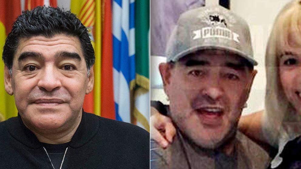 Maradona, Uma Thurman, Renée Zellweger y otros 'crímenes' del bisturí