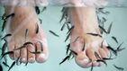Se queda sin los dedos de un pie por culpa de un 'spa' de peces