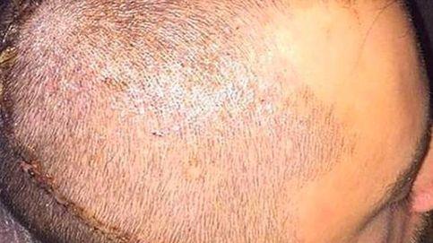 El brutal cabezazo que retira del fútbol a Ryan Mason con solo 26 años