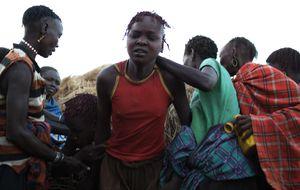 6 de febrero, el mundo planta cara a la ablación: Día Internacional de Tolerancia Cero con la Mutilación Genital Femenina