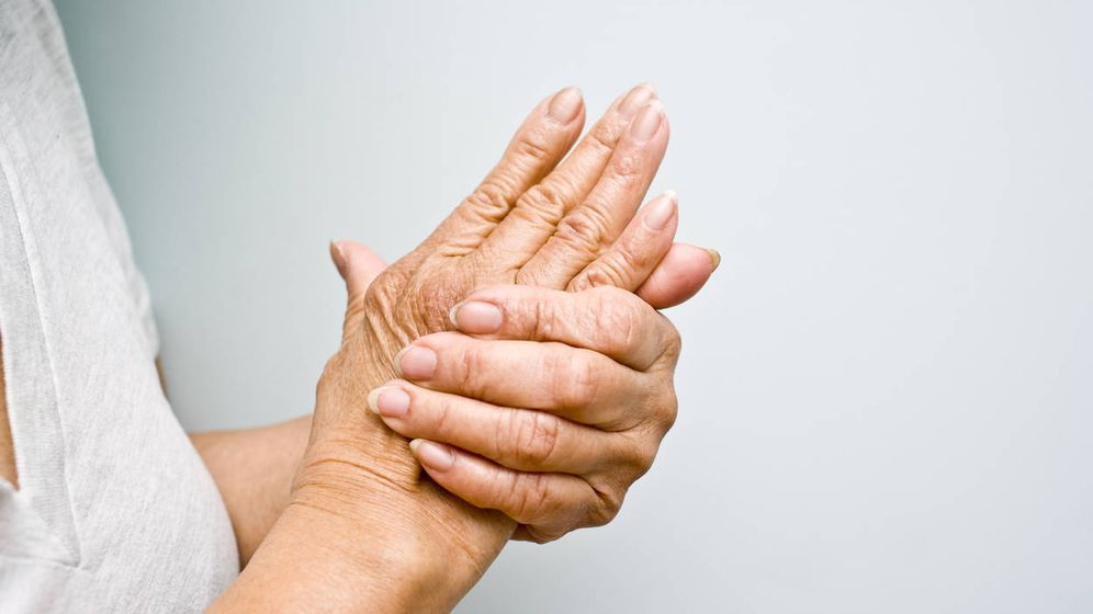 Foto: Artritis. (iStock)