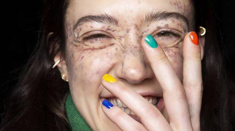 Gestos que provocan manchas en tu piel (que no sabías) y remedios para eliminarlas