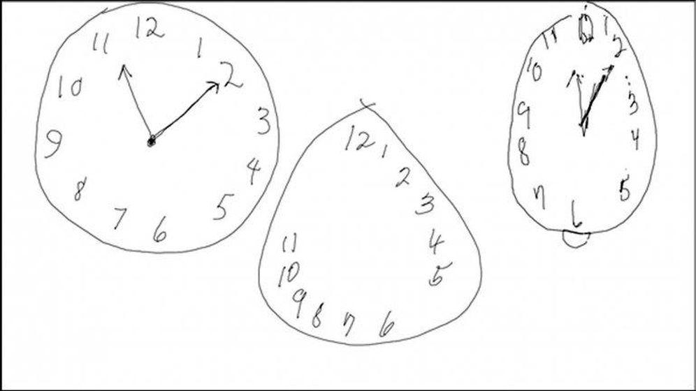 Foto: De izquierda a derecha: el reloj que dibujaría una persona sana, el de una persona con alzheimer y el de alguien con Párkinson. (EC)