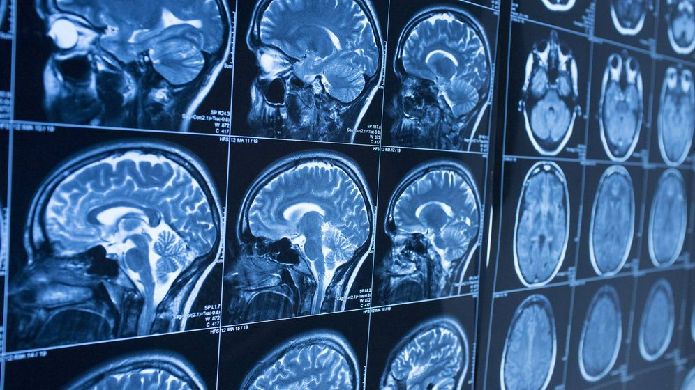 Foto: La clave puede no estar en el cerebro. (iStock)