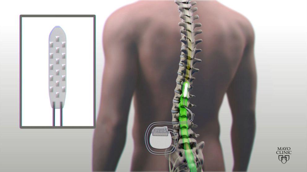 Las lesiones medulares aumentan el riesgo de enfermedad mental