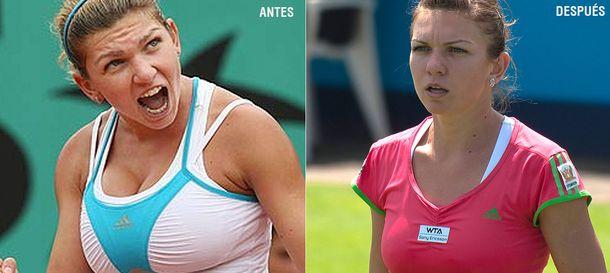 Foto: Simona Halep o cómo convertirse en la revelación del tenis tras operarse el pecho