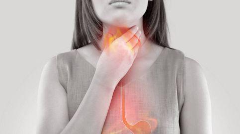 Hernia de hiato: los problemas de que el estómago no cierre