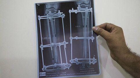 Quiero ser más alto: los alargamientos de piernas que arrasan en la India