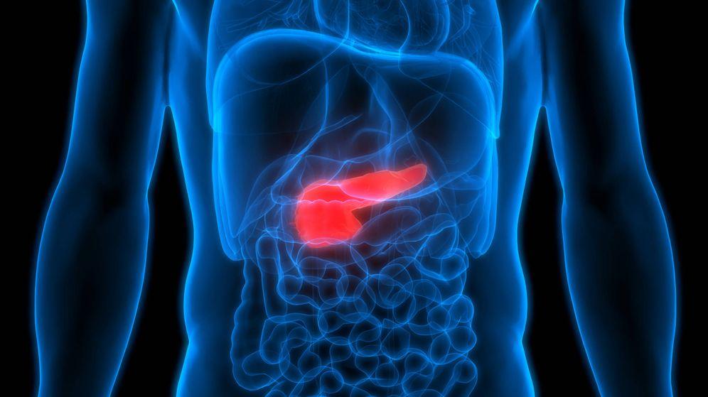 Foto: Una variación de la cirugía bariátrica se ha visto útil para curar la diabetes tipo 2. (iStock)