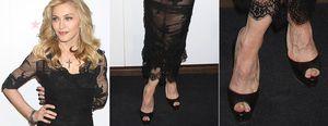 Foto: El láser 'quita hongos' que Madonna debería probar