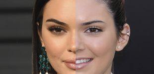 Post de Rinoplastia, ácido hialurónico y otros: el cirujómetro de Kendall Jenner