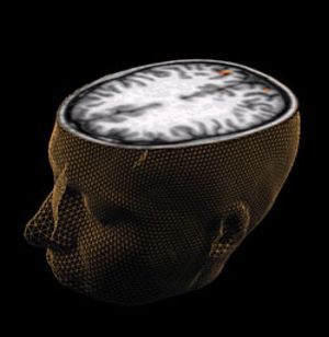 Localizan en qué parte del cerebro se desarrolla la esquizofrenia