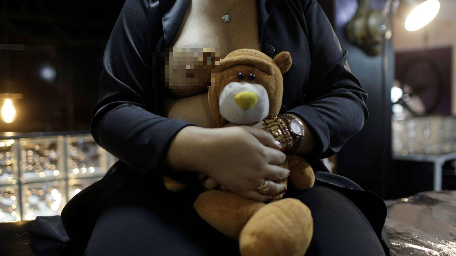 Foto: Una paciente después de ser operada por un cáncer de mama. (Reuters)