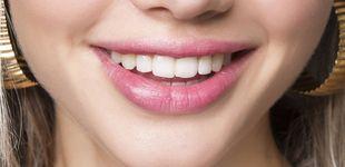 Post de Objetivo sonrisa blanca: todo lo que necesitas para presumir de dientes