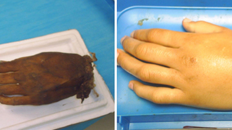 Una mano antes y después del proceso aplicado por el médico forense (D.B)