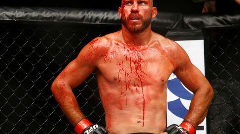 Cerrone acaba bañado en sangre en la UFC, pero tiene cuerda para rato