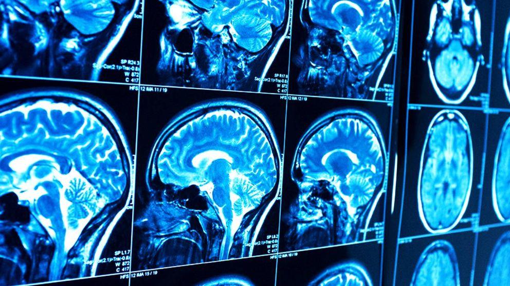 La gente con Alzheimer acumula más hierro en la parte exterior del cerebro
