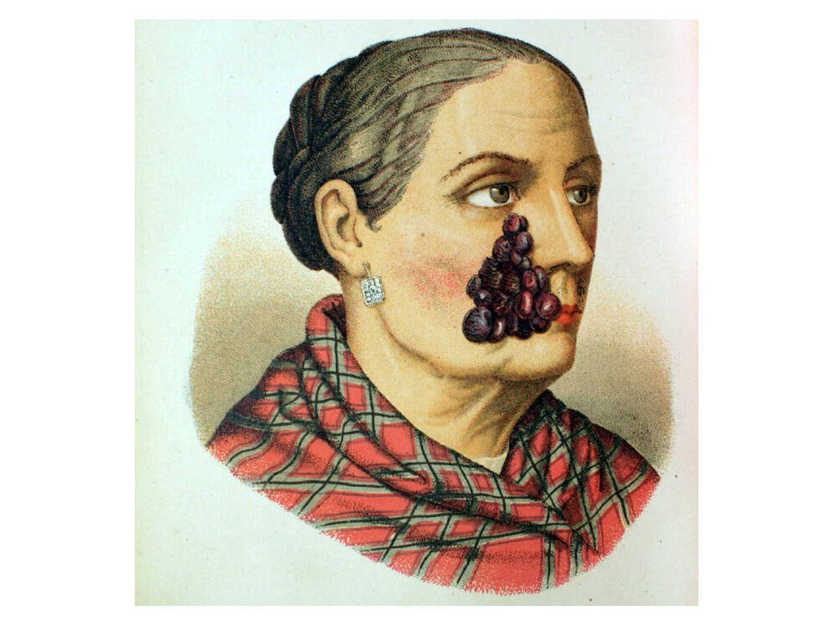Foto: Lámina del 'Álbum Clínico de Dermatología' de Pérez Ortiz (1886). (Museo Olavide)