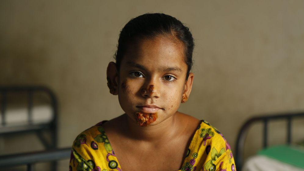 Foto: Shahana Khatun, una niña de 10 años de Bangladesh que sufre el síndrome del hombre árbol (Reuters)