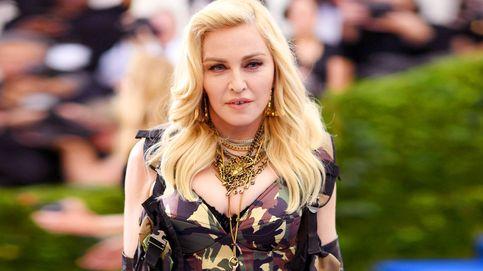 La deformación facial de Madonna: de los liftings a los rellenos