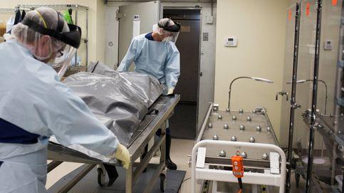 Una mujer vivió 99 años con los órganos invertidos sin saberlo
