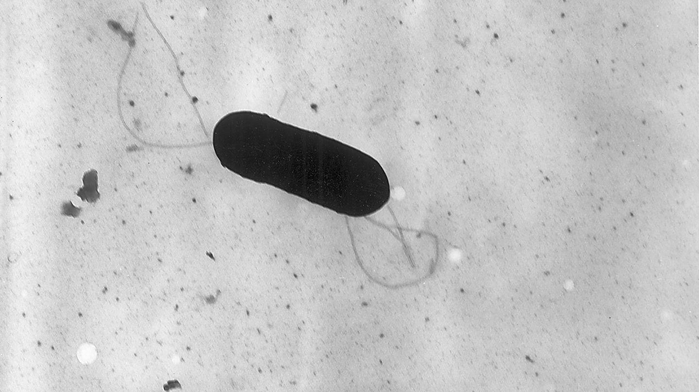 Así es la bacteria de la listeria.