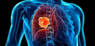 Post de ¿Qué posibilidades hay de heredar un cáncer de pulmón?