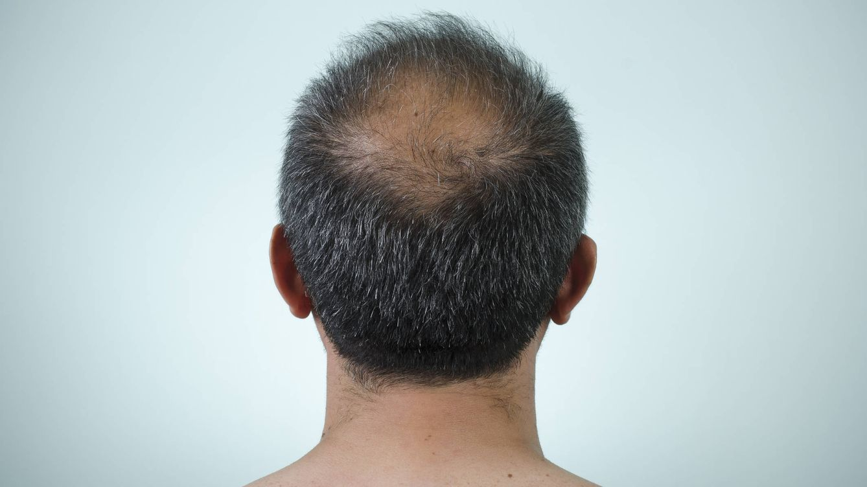 ¿Si me injerto pelo ya nunca más se me va a caer? Un experto responde
