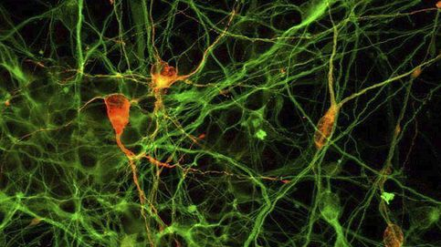 Identifican neuronas clave para el tratamiento del autismo