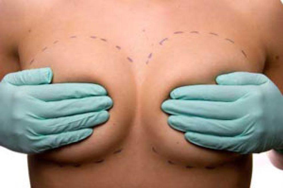 Foto: Mitos y verdades de la mamoplastia según Planas