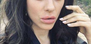 Post de Los nuevos labios de Marion Cotillard… ¿qué se ha hecho?