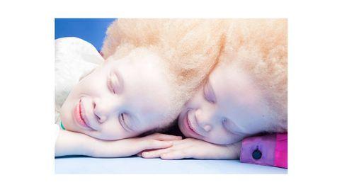 Lara y Mara Bawar, las gemelas albinas que se están rifando las marcas de moda