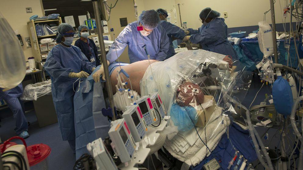 España bate récord con una cadena de seis trasplantes renales de vivo