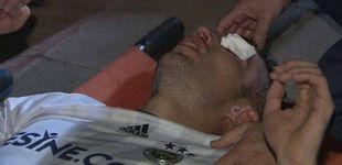 Post de Robin van Persie sufre una grave lesión en el ojo tras recibir un codazo