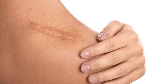 ¿Es difícil borrar una cicatriz? Siete verdades que debes conocer