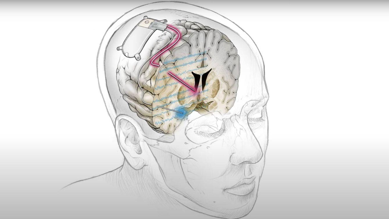 Foto: Un nuevo implante cerebral que ha sido capaz de tratar con éxito la depresión.  (UCFS)
