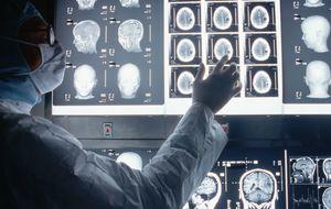 Pandemia silenciosa: las 12 toxinas que acaban con tu cerebro