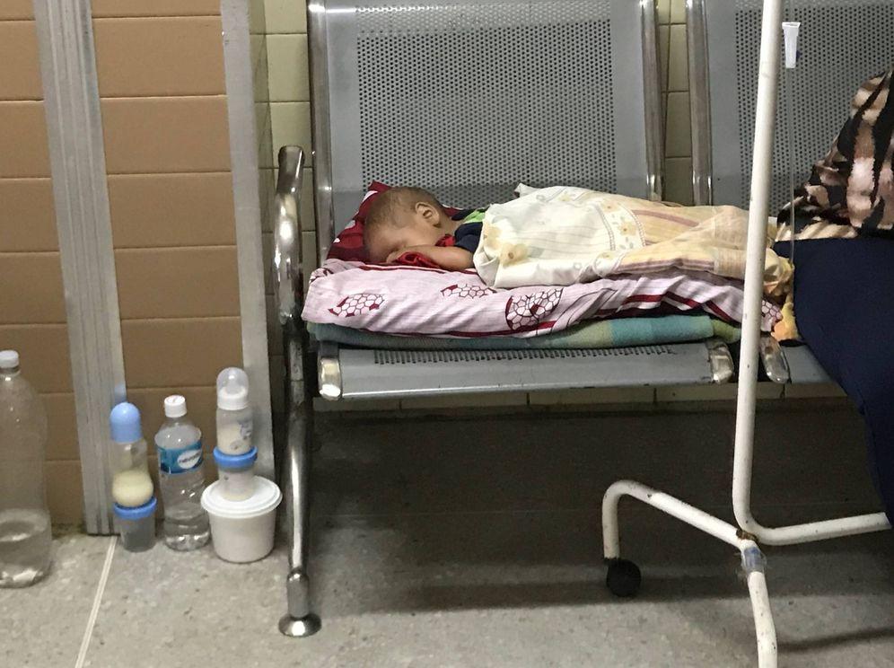 Foto: Un bebé desnutrido en un hospital de Puerto Ordaz, en el Arco del Orinoco (A. Hernández)