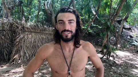 Logan ('Supervivientes') muestra el resultado tras el accidente ocular en Ibiza