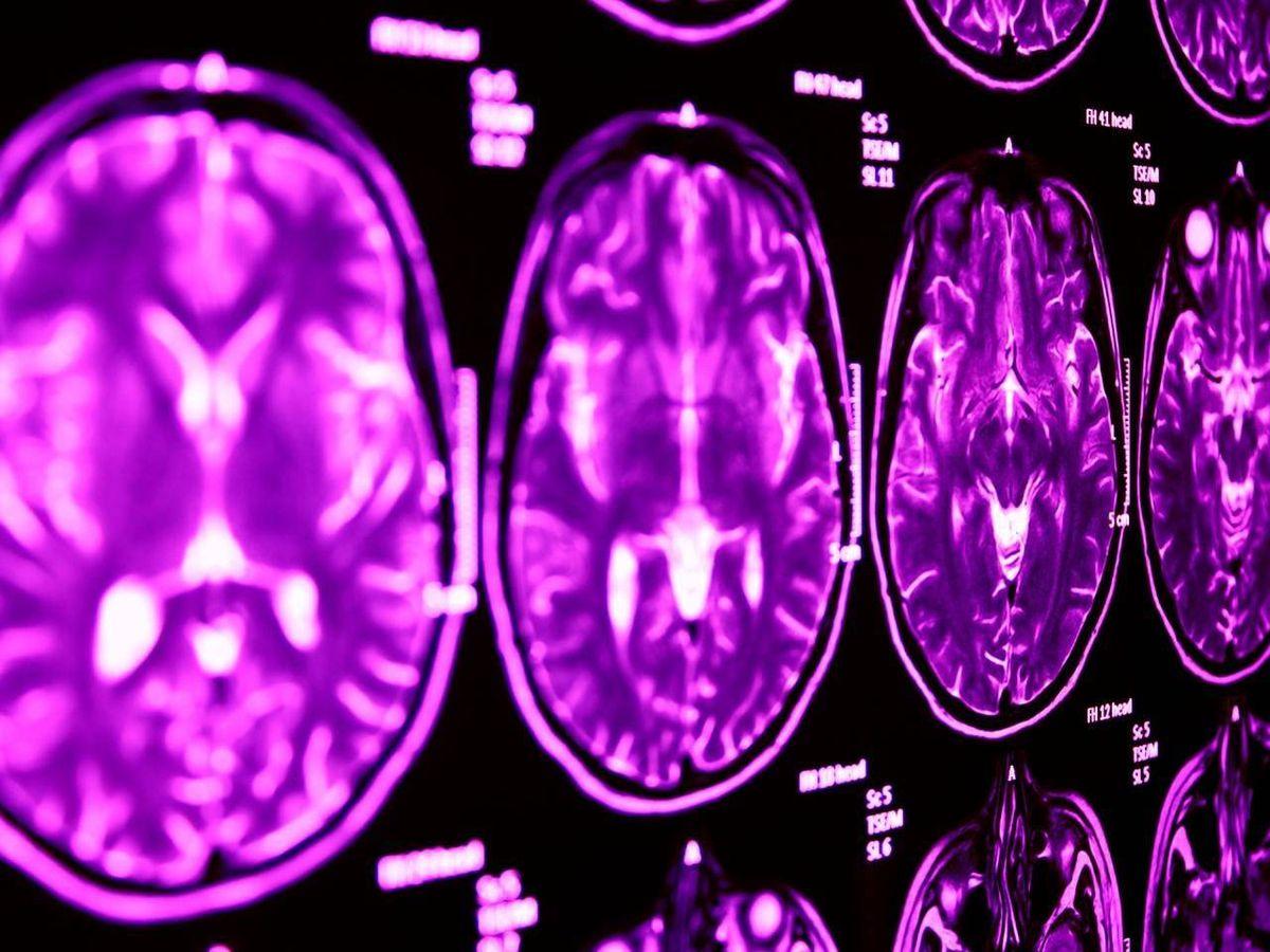 Foto: Resonancia magnética cerebral. Foto: Lancaster University