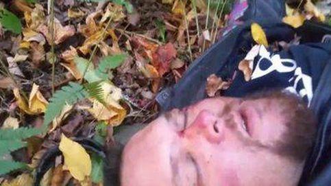 Sufre un accidente de moto y se despide de su familia en vídeo pensando que iba a morir
