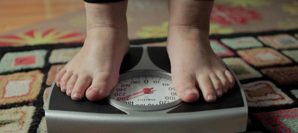 Foto: No es lugar para flacos: la obesidad, pandemia global