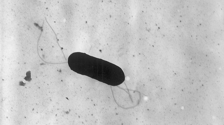 Foto: Listeria monocytogenes.