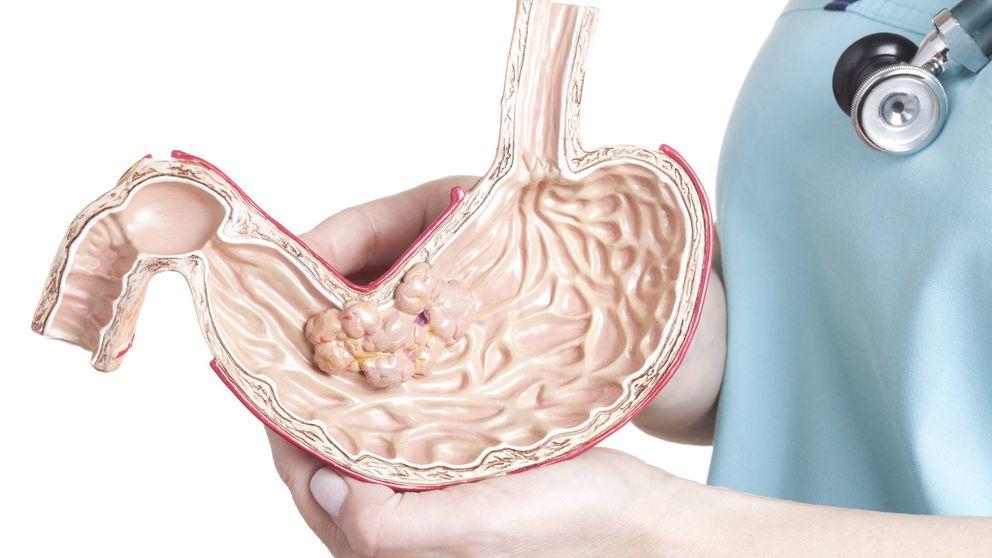 Seis síntomas del cáncer de estómago que no tienen que ver con el dolor