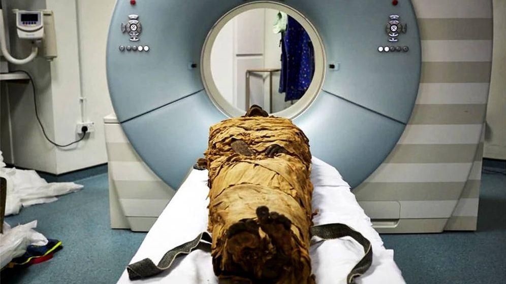 Foto: La momia fue sometida a escáneres médicos para poder recrear su tracto vocal en 3D (Foto: Nature)