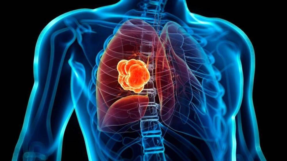 Foto: Representación de cáncer de pulmón. (EC)