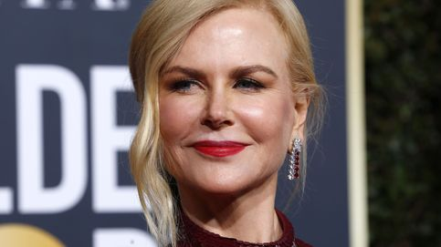 Evita el efecto Pillow Face de Nicole Kidman y otras celebrities en los Globos